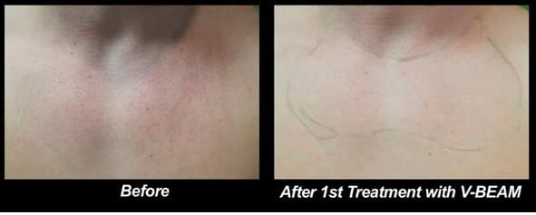 """Wondering """"what can I do for rosacea?"""" After one session with Dr. U and the V-BEAM laser this patient already noticed significant progress.*"""