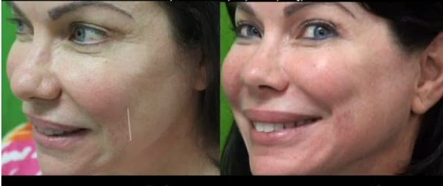 Belotero Fine smile lines or smile wrinkle treatment before and after in a Manhattan Beach Los Angeles patient of Dr U