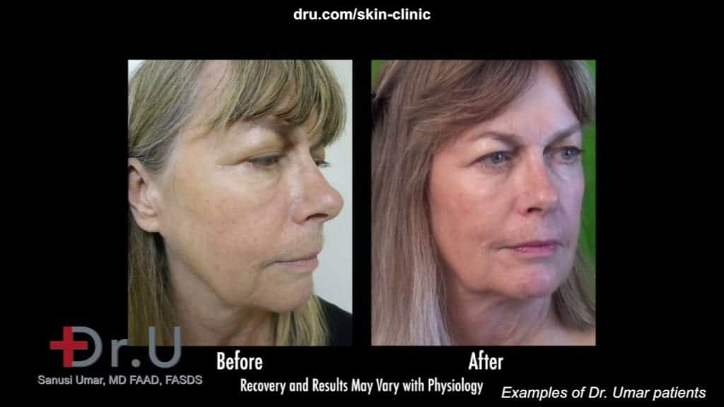 Non surgical liquid facelift using Radiesse and botox by Dr U prevents the need for a facelift
