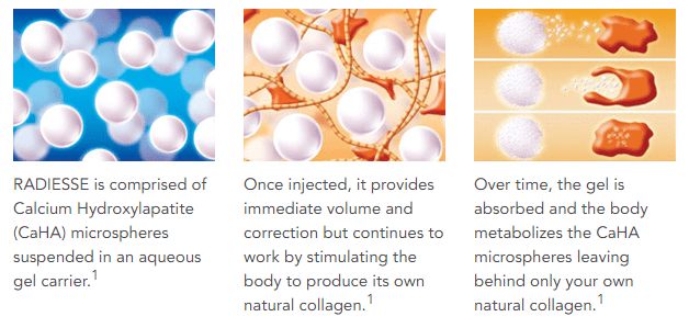 Radiesse works quickly to provide nearly instant results continues to work by encouraging the body's natural production of collagen. (Image source: http://www.radiesse.com/ )