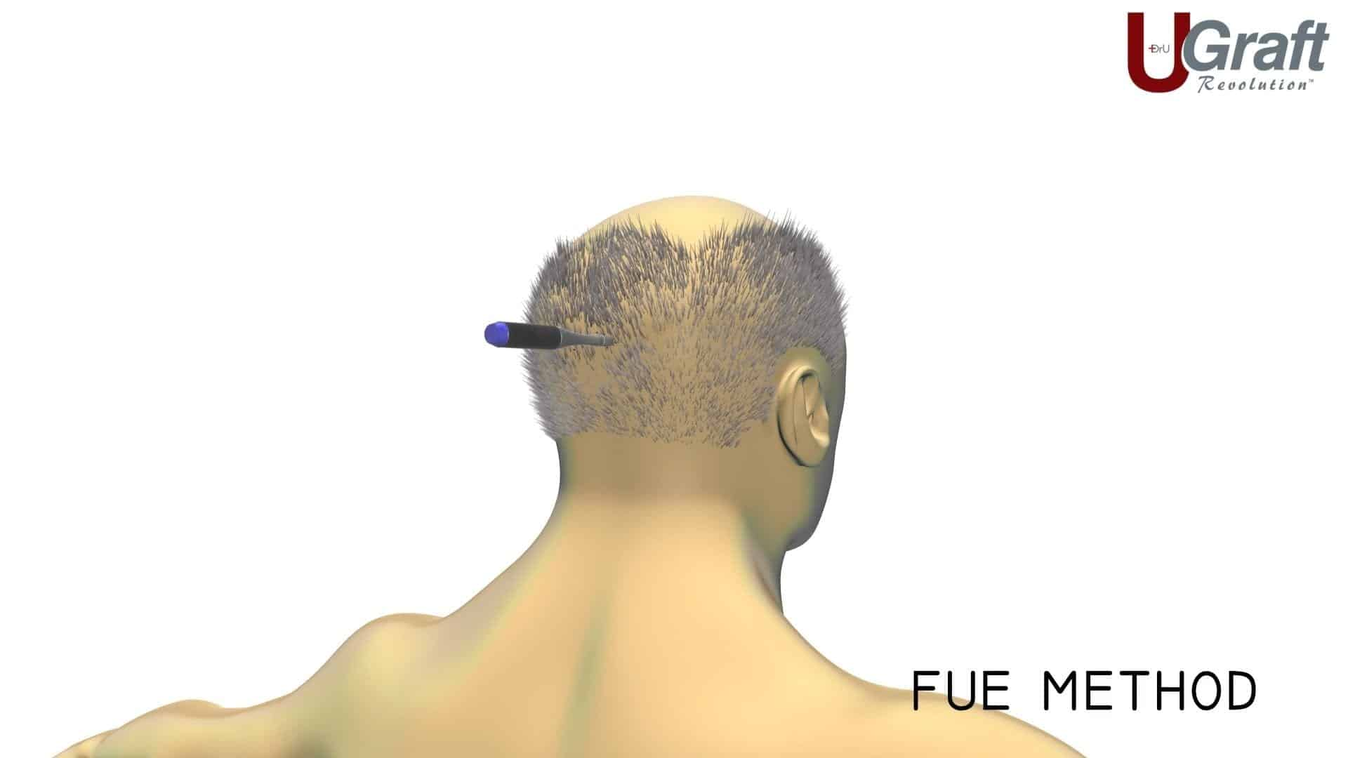 Dr. Umar deployed his advanced FUE method to extract 200 grafts from this patients head in order to fill in her temples. This photo shows how the FUE tool works to extract individual hair follicles to avoid any significant scarring.