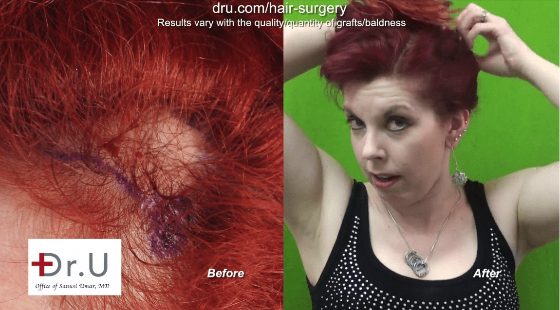 Patient is happy with her traction alopecia treatment results at the Dr. U Hair and Skin Clinic.*