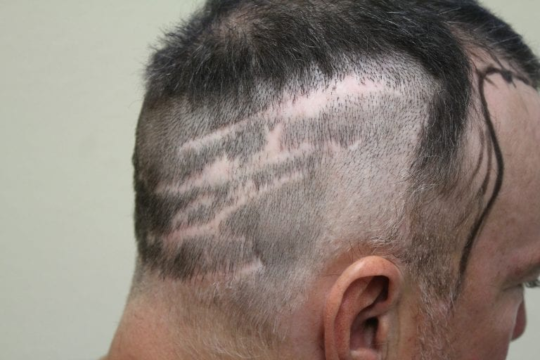 Strip Hair Transplant, FUSS patient with multiple linear scars