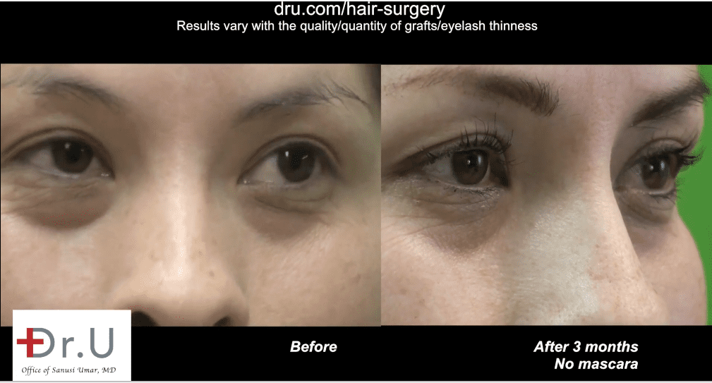Dr.UGraft™'s unique design now makes it possible to use FUE grafts for eyelash transplants.*