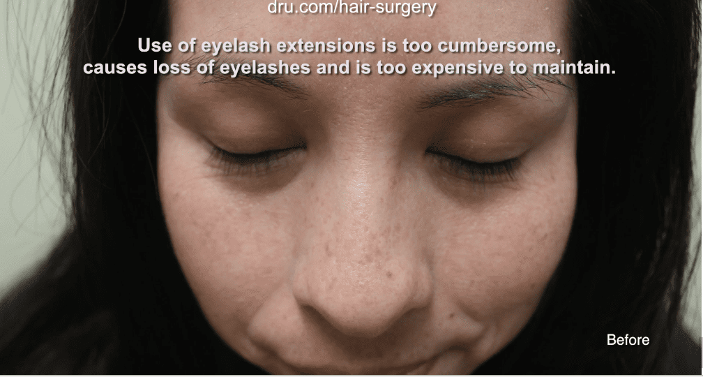 This patient had thin and sparse eyelashes before Dr.UGraft's eyelash extension surgery.