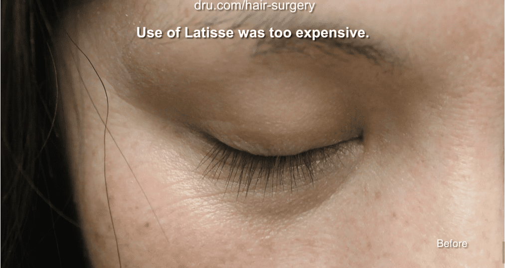 The patient was having difficulty thickening her eyelashes before undergoing Dr.UGraft's eyelash implant surgery.