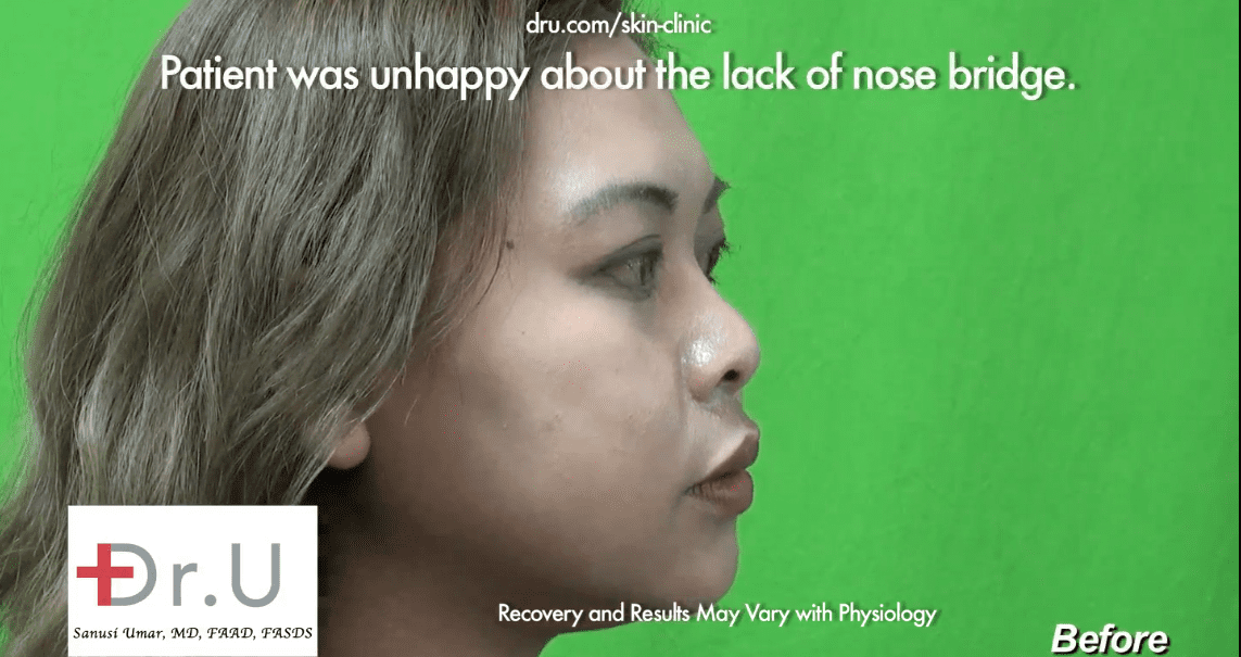 Low Asian nose bridge before her non-surgical nose job.