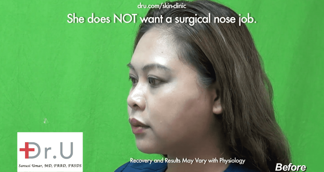 The patient was unhappy with her low nose bridge which caused her eyeglasses to constantly slide down her nose.