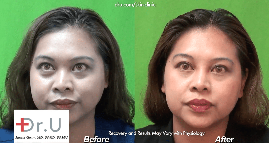 The patient was very pleased with her Radiesse injection nose job by Dr. U.*