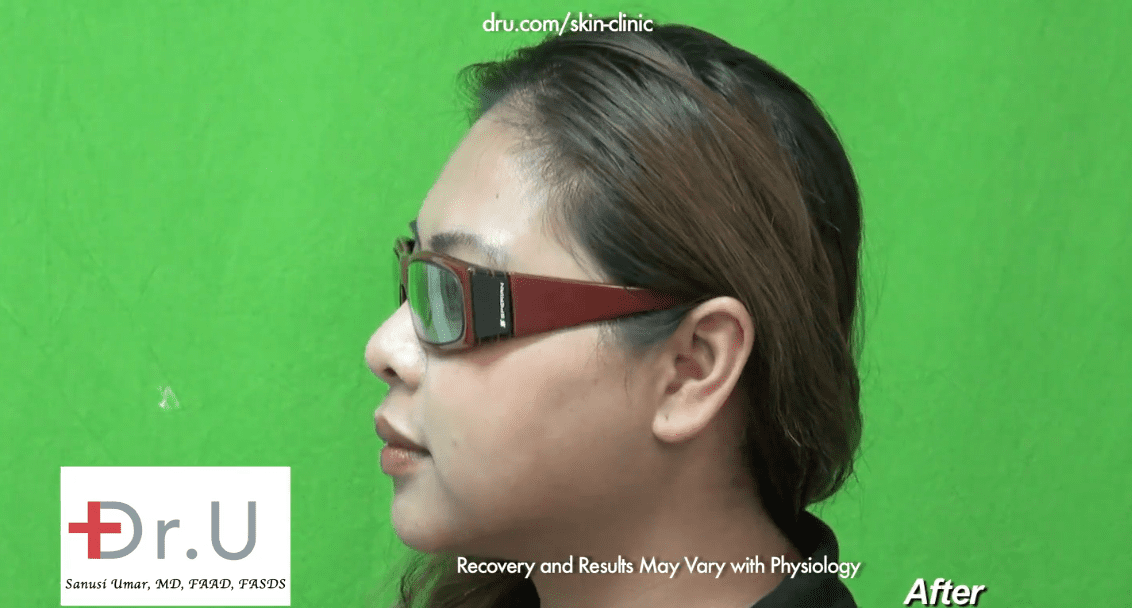 The patient's eyeglasses now stay in place since she no longer has a low nose bridge.*