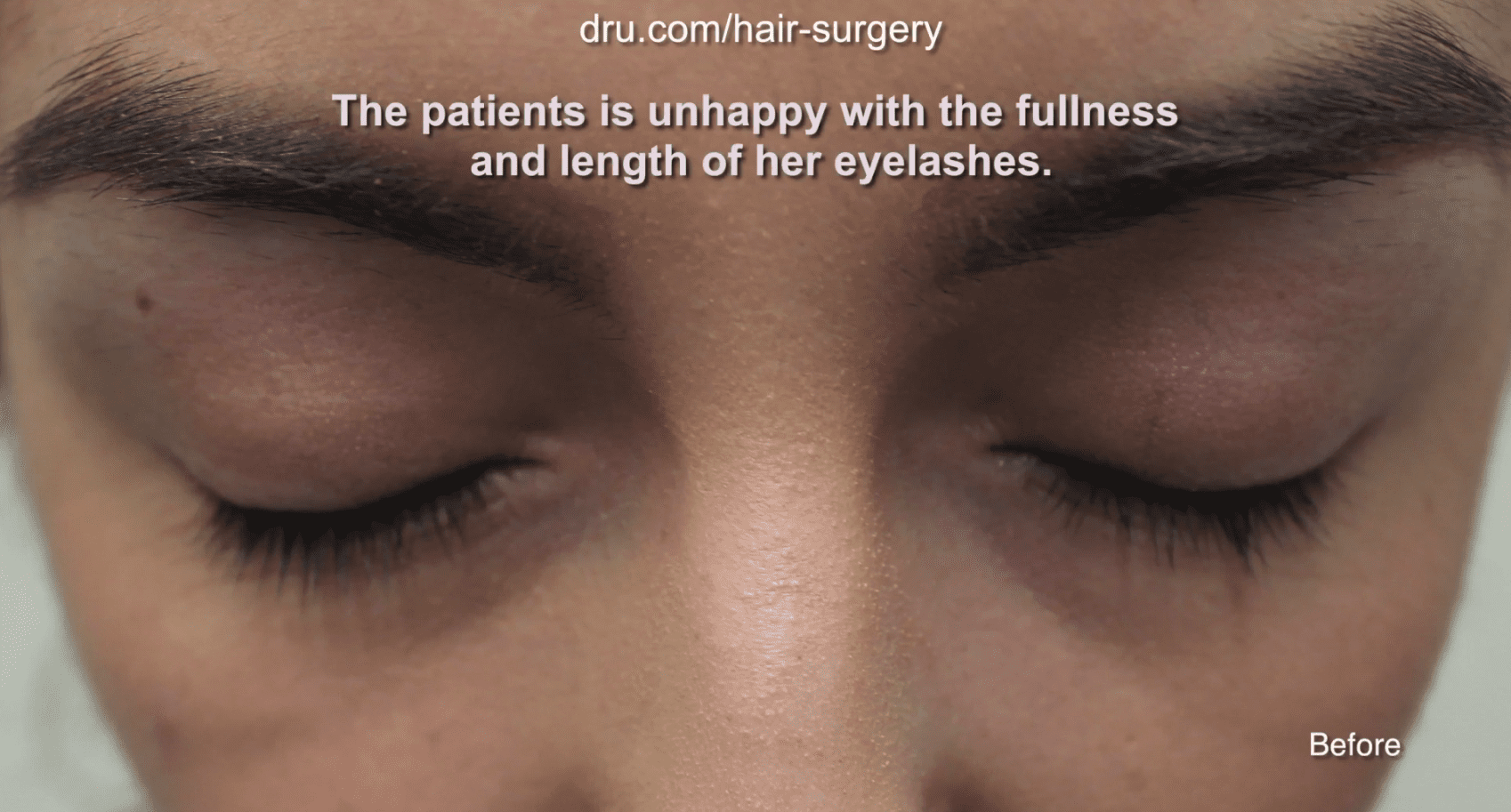 The patient was unsatisfied with the lack of density and length of her eyelashes before her eyelash hair transplantation with Dr. U.