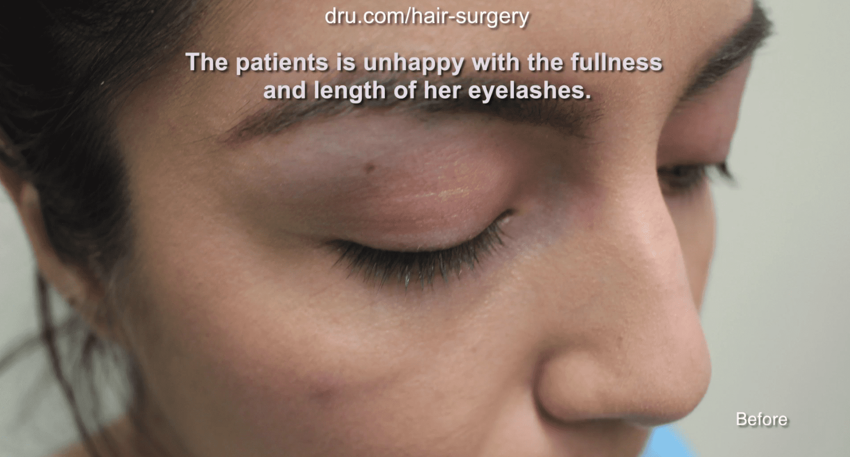 Instead of continuing to style her eyelashes every day to her desired density and length, the patient decided to consult Dr. U about an eyelash hair transplant.