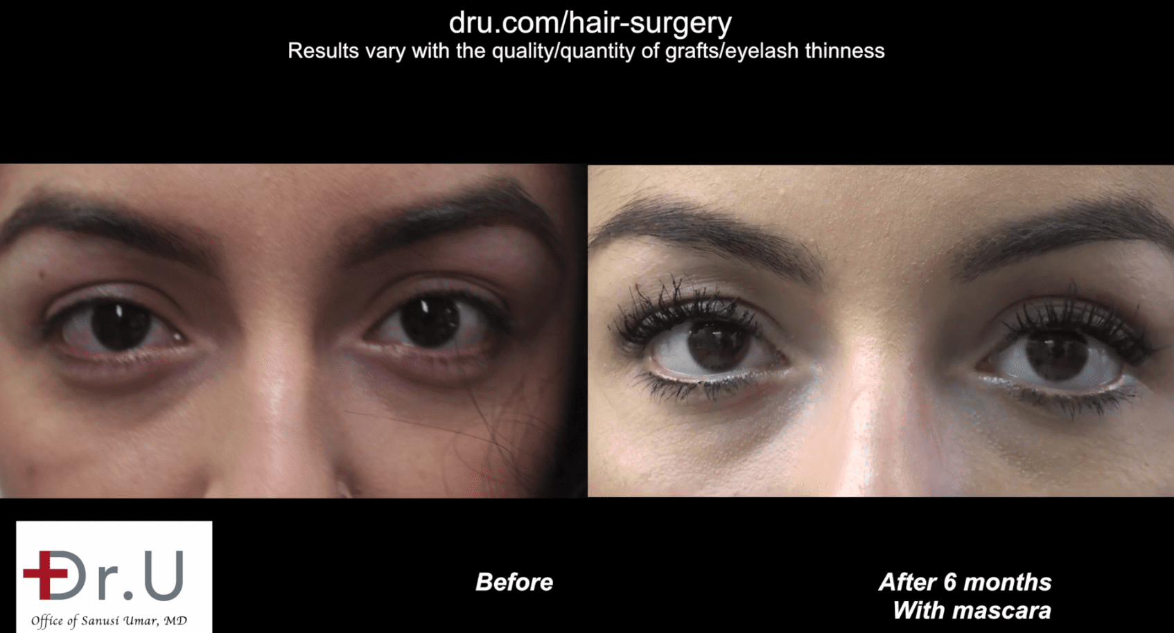 The patient is able to curl and style her eyelashes 6 months after her eyelash hair transplantation.