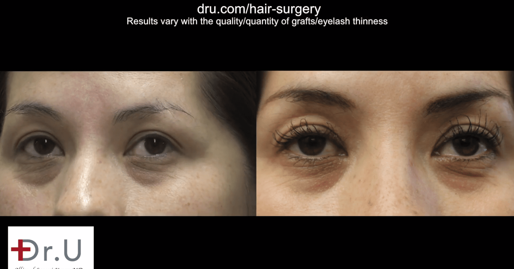 This patient got longer thicker eyelashes after Dr.UGraft eyelash extension surgery