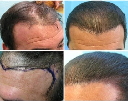 After flap surgery, before repair by Dr U, the patient had a scar on hairline and abnormally directed frontal hair as well as abnormal hairline temple recesses