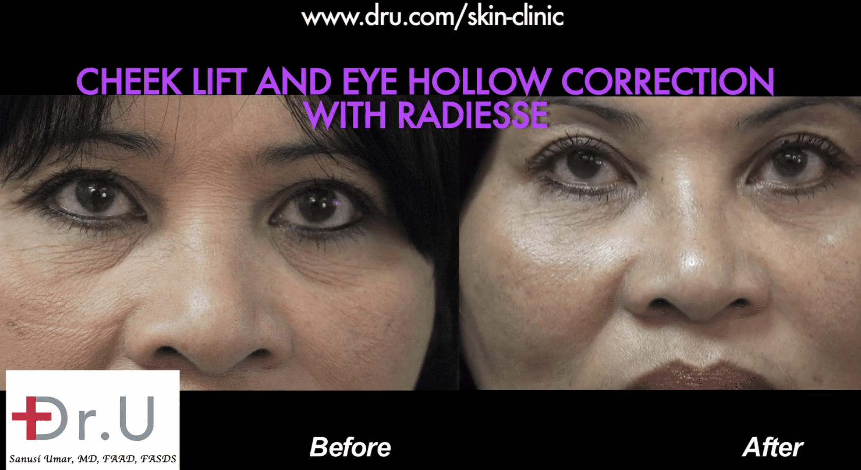 Under eye hollow filler before and after photos using Radiesse.*