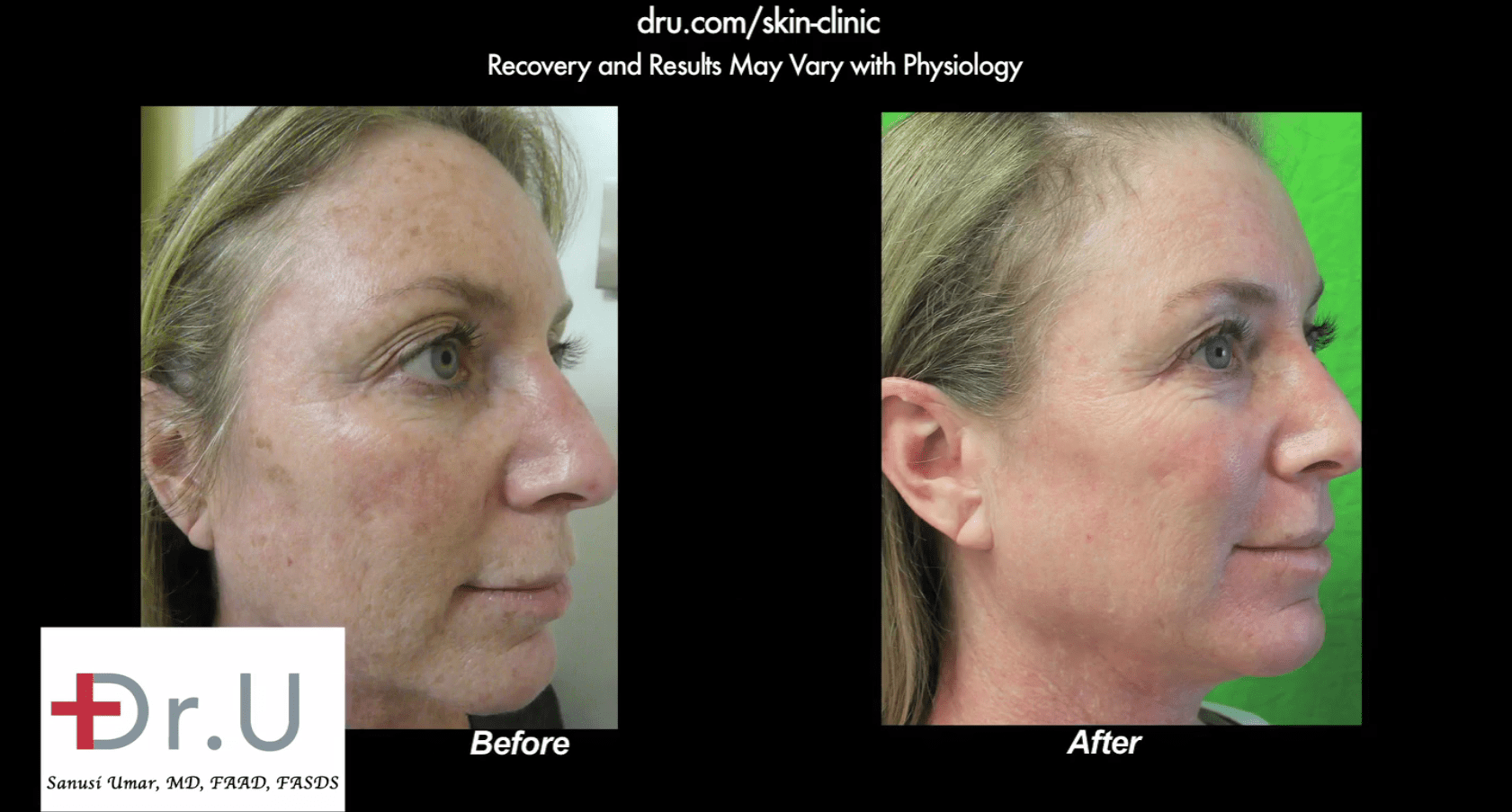 Spectra laser before and after only one session results in dramatic improvement.*