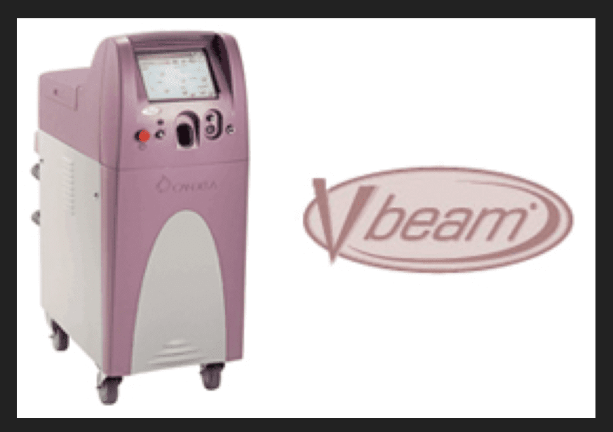 V beam laser by Syneron Candela Company is the industry gold standard for laser treatment of red vascular lesions and is used by Dr U skin clinic of Manhattan Beach Los Angeles