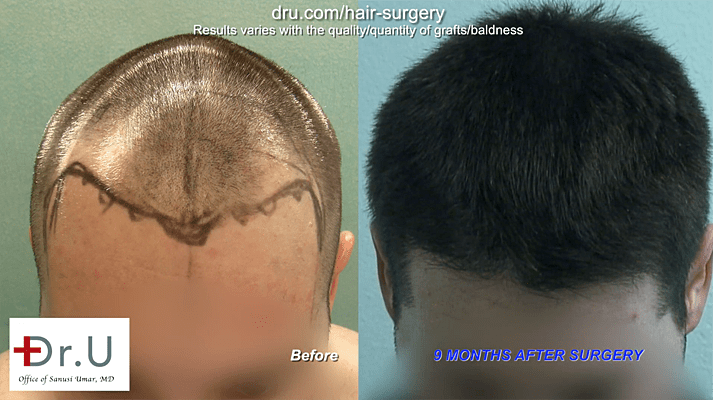 Dr.UGraft ™ hairline and temple restoration on a young patient, using 3200 grafts.