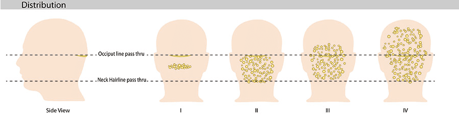 The distribution of papules and nodules on the scalp, as indicated in the image above, helps determine the best acne keloidalis nuchae medical treatment.