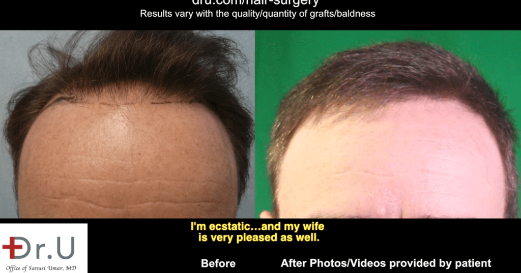 Patient suffering from Norwood 3 crown hair loss visits Dr. Umar to restore and refine hairline and get rid of hair transplant scar