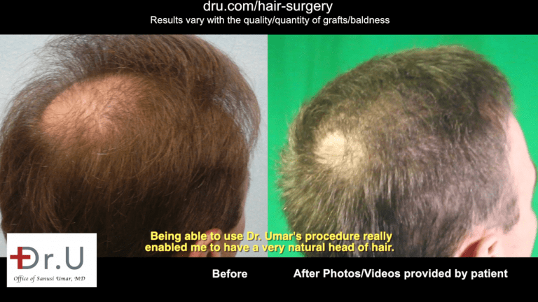 Using UGraft technology, Dr. Umar was able to get rid of a hair transplant scar by providing more coverage where the patient desired