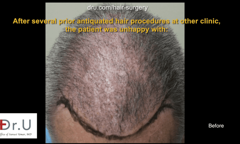 Due to the common misconception that older procedures are more reliable, individuals such as the patient above are faced with the problem of repairing older hair restorations results.