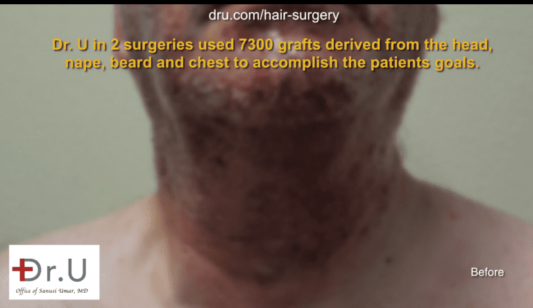 Dr. U harvested hair from the head, nape, beard and chest to expand the donor pool until sufficient grafts were available for a hair surgery correction.