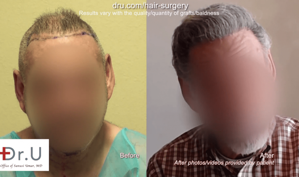 Unable to provide enough donor hair from his head, this patient used donor areas from his body in order to achieve the hair surgery correction best for him