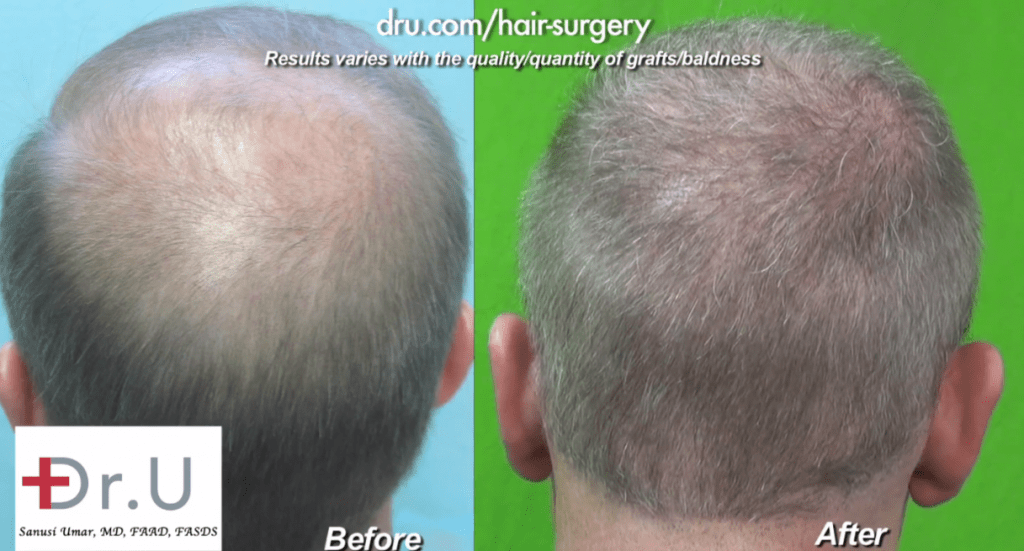 View of Crown for Norwood 6 before and after Dr.UGraft Surgery*