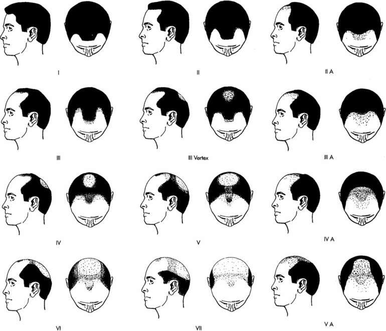 The Norwood Scale can help evaluate different types of hairlines as hair loss progresses.*