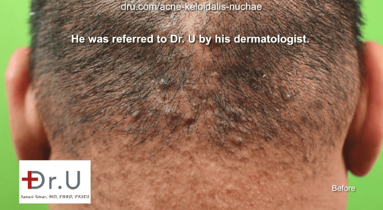 This patient was referred to the Dr.U Skin Clinic by his dermatologist for an acne keloidalis nuchae medical treatment. His AKN was still in the papule stage, which qualified him for non-surgical treatment of acne keloidalis nuchae.