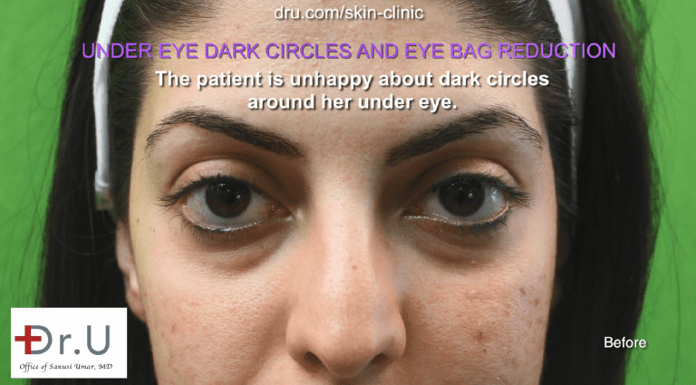 This Palos Verdes patient sought a long-term solution for her dark circles and eye bags that did not involve surgery.