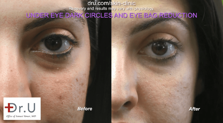 Dr. Umar treated the patient's sunken lower eyelids and under eye shadows with Radiesse. Since Radiesse is white and opaque, there is no risk of bruise-like discolorations.