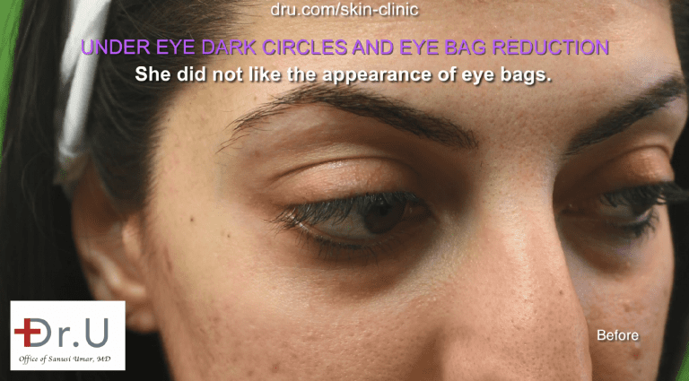 Under eye shadows can be caused by unhealthy lifestyle choices, as well as genetics. Those with dark circles due to lack of sleep, dehydration, smoking, and other external factors can reduce their appearance by making lifestyle changes. However, for individuals with hereditary dark circles, this is not a solution.
