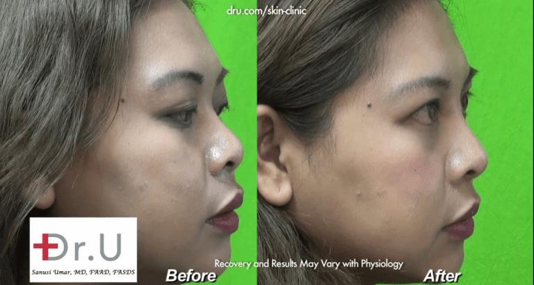 Low Nose Bridge Corrected With Radiesse