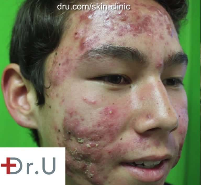 Los Angeles teen seeking treatment for his acne as well as a way to get rid of acne scars.