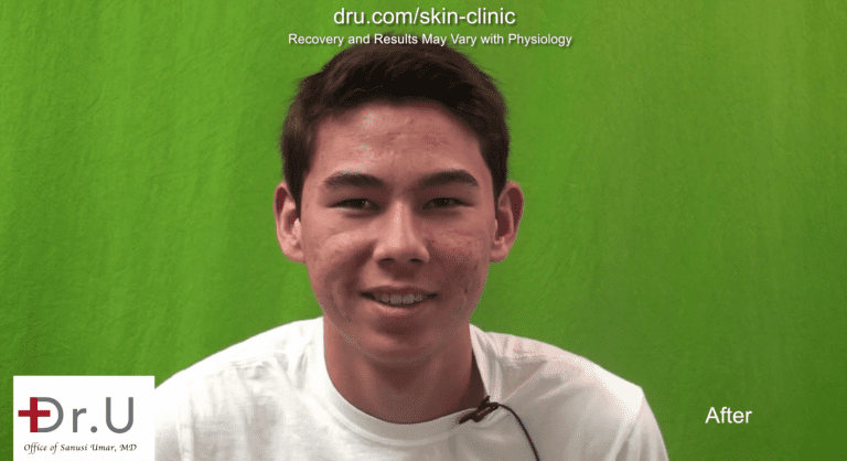 This Los Angeles patient's quest to get rid of acne scars was a success thanks to the two step process that started with photodynamic therapy for acne
