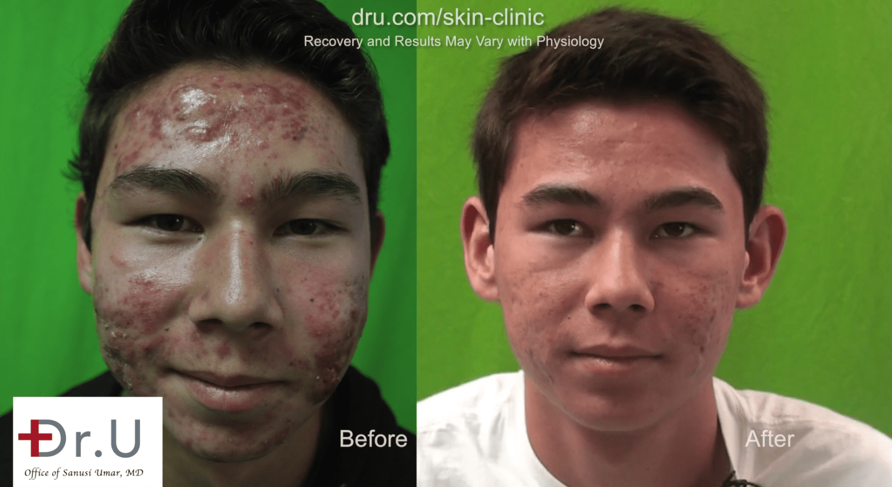 Video Get Rid Of Acne Scars With Photodynamic Therapy For Acne Los Angeles Ca
