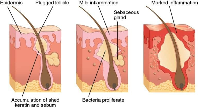 A good treatment for severe acne will address the physiological causes contributing to the condition, such as bacteria and the inflammation that follows.