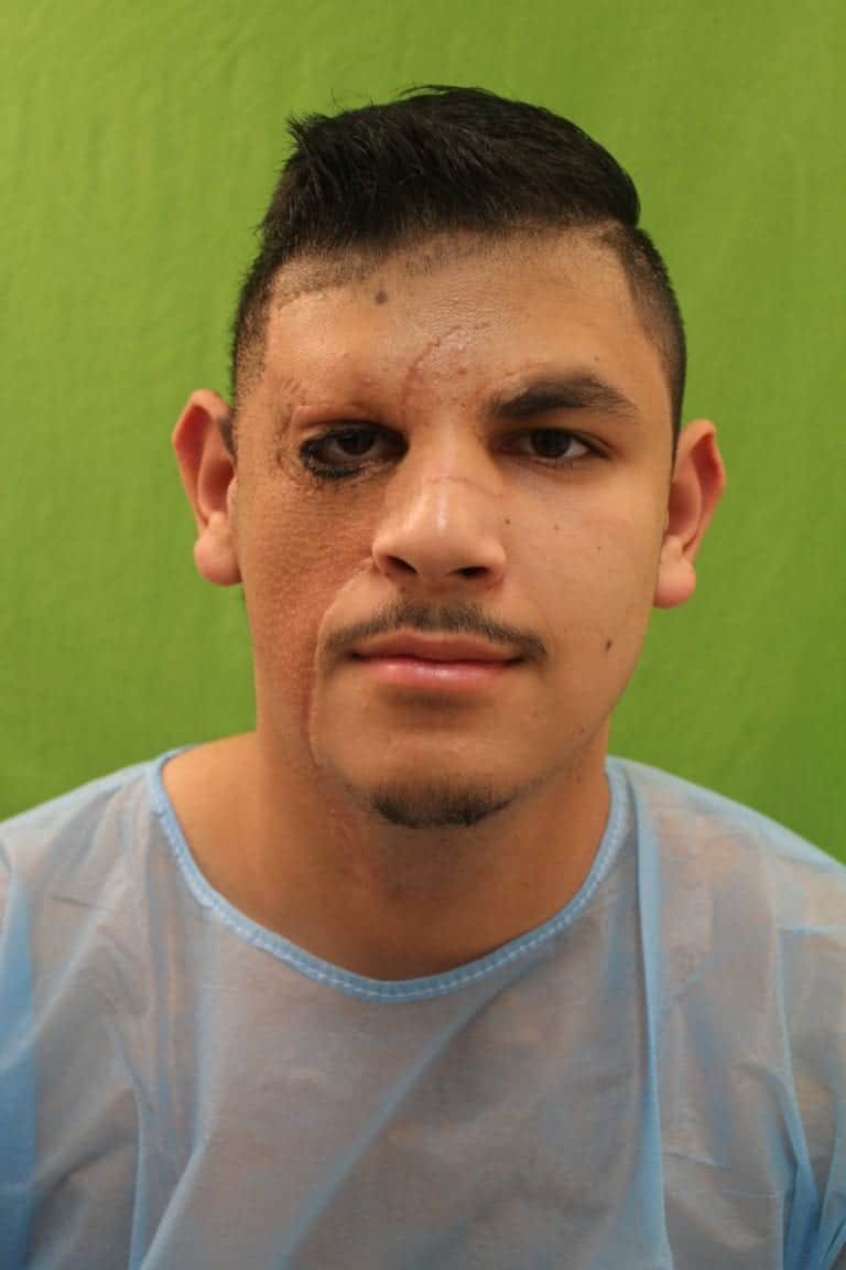 Patient shown before his hair restoration surgery for the right eyebrow with Dr. Umar