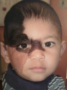 Patient shown as a young child with a congenital nevus on the right side of his face*