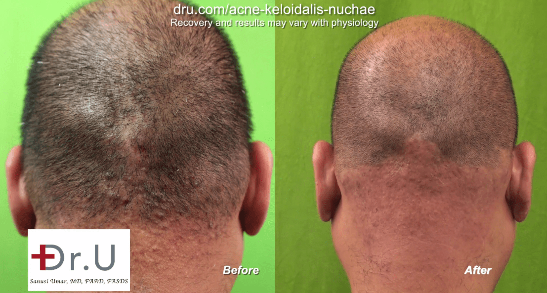 Patient before and after his AKN laser treatment