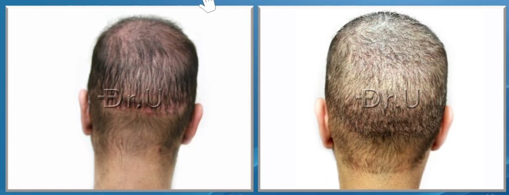 Hair Transplant Reparative Surgery by Dr. Umar in Manhattan Beach, Los Angeles