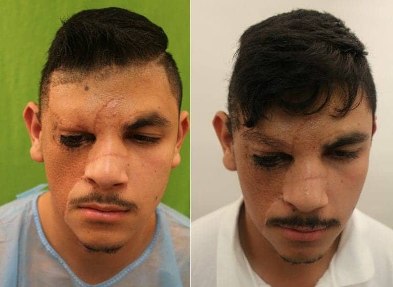 Congenital nevus patient before and after his eyebrow construction surgery with leg hair