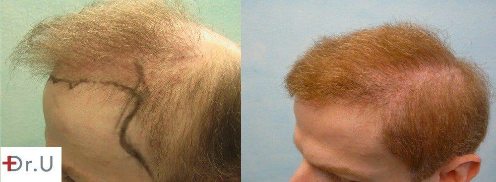 Hair transplant repair who required hair restoration for the temples to complete a normal looking outcome
