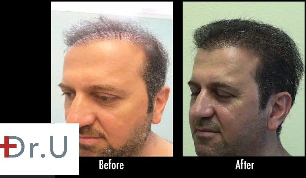 Hair restoration for the temples is necessary for completing the look of a well crafted hairline