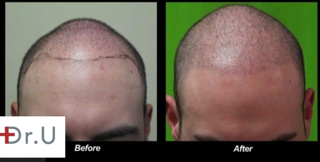 This temple points hair transplant focused on the diffuse insertion of a small number of grafts to create a more youthful looking frame around this patient's face