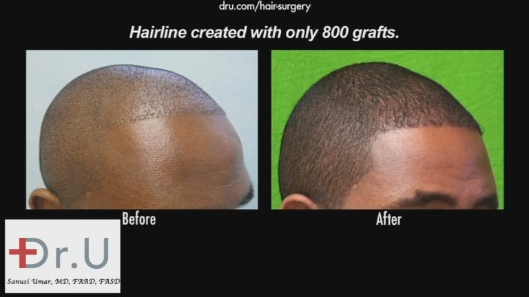 FUE transplant in black patients for hairline reconstruction also requires the creation of appropriately shaped temple points