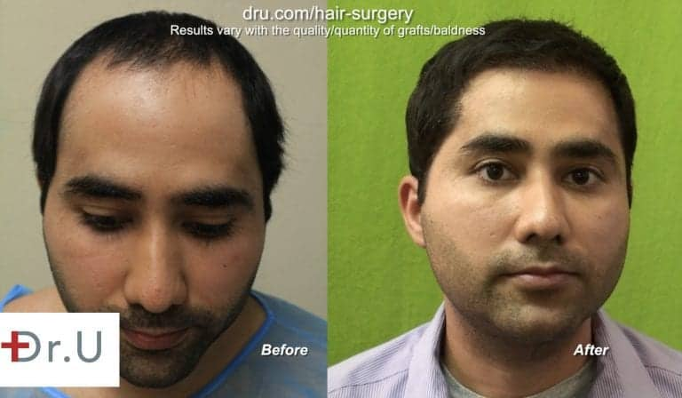 Dr. U constructed a soft, natural looking hairline for this patient using 6,000 grafts from the head and beard. The results of the FUE hairline restoration are shown 2 years after surgery